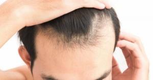 دلیل ریزش مو مردان و زنان