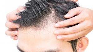 چه کنیم موهای ریخته مجدد رشد کند