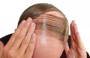 آیا ریزش مو ارثی میشود؟