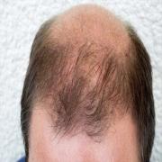 ارتباط ریزش مو و بالشت زیر سر
