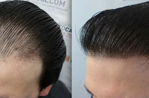 چربی مو از مهمترین عوامل ریزش مو